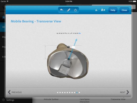 zimmer arthritis 411 on the app store. Black Bedroom Furniture Sets. Home Design Ideas